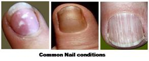 Nail biting Thumb sucking article image