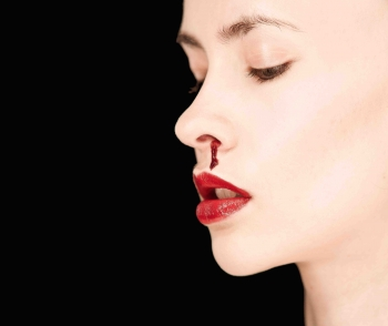 Bloody Nose | The Wellness Directory