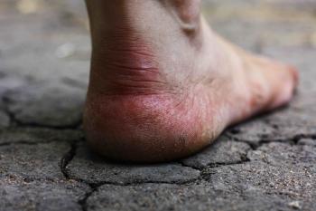 Cracked Heel | The Wellness Directory