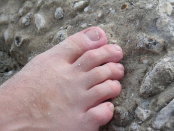 Ingrown Toe Nail | The Wellness Directory