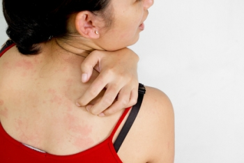 Rashes | The Wellness Directory