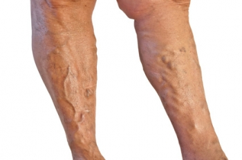 Varicose Veins | The Wellness Directory
